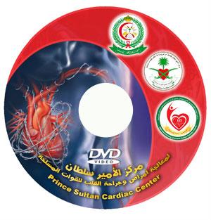فيلم مركز الأمير سلطان لمعالجة وجراحة أمراض القلب.